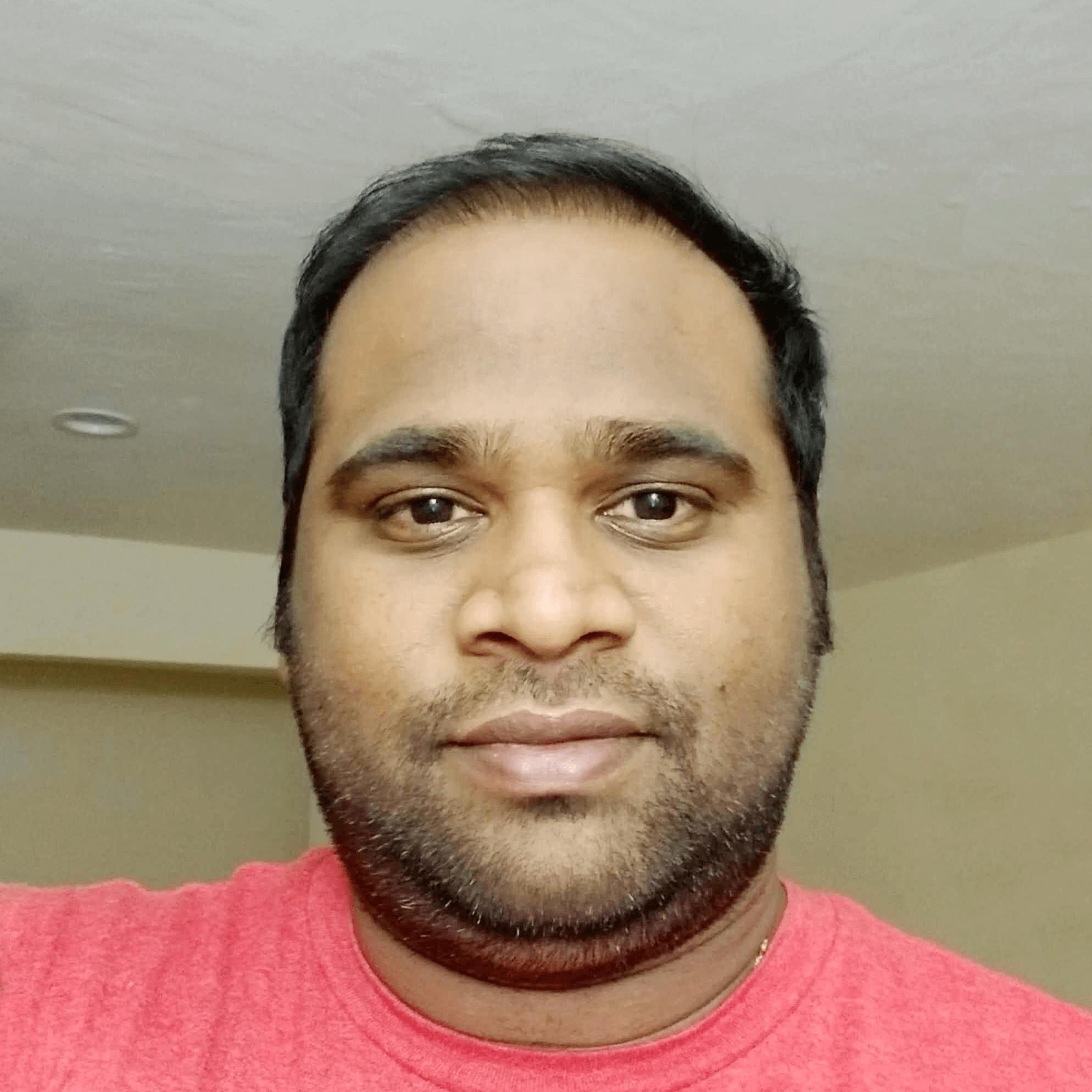 Amarendra Reddy Thummeti